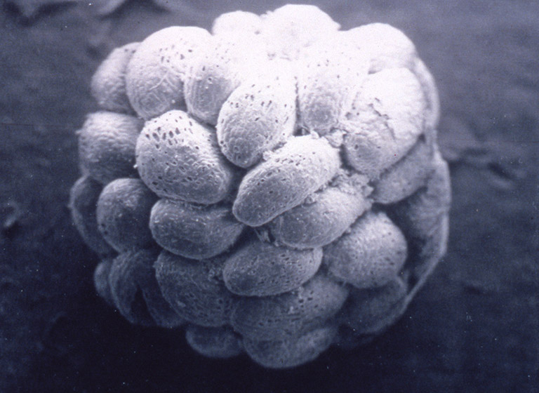 A close-up photograph of many seeds attached into a ball.